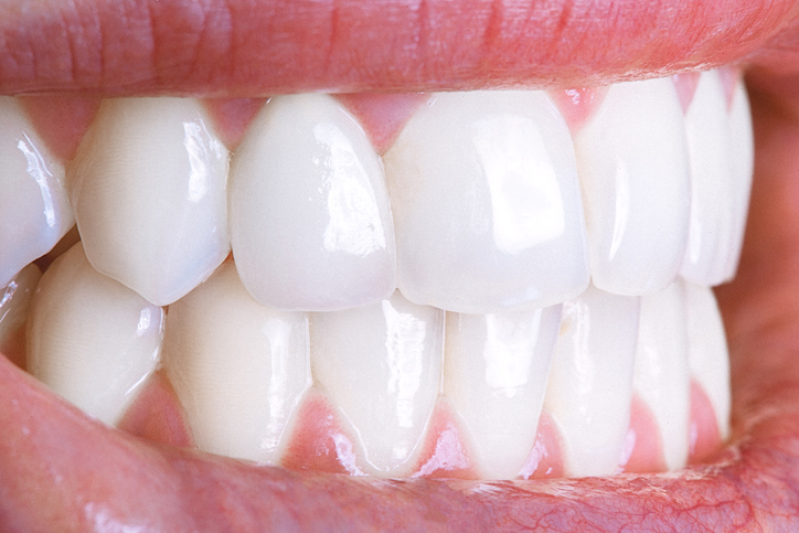 Tips to Help Keep Your Teeth White | Dynamic Smile Design